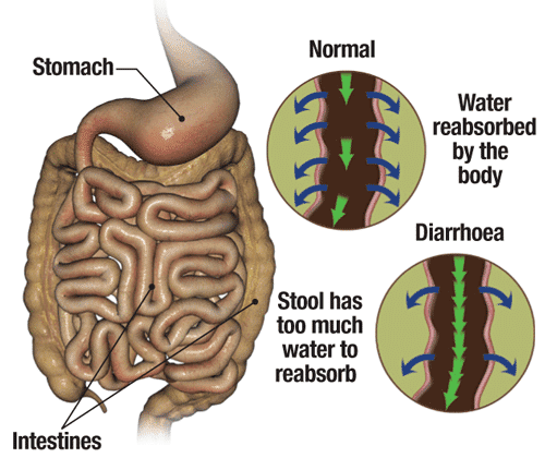 Diarrhoea Symptoms Treatment Information By Medinformer