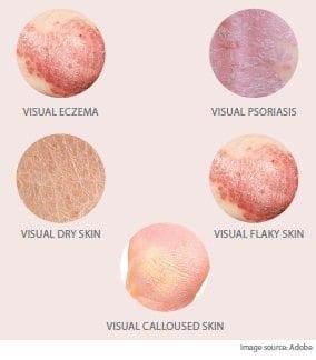 dry-skin-types