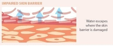 impaired-skin-barrier