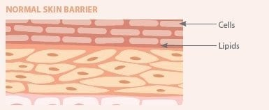 normal-skin-barrier