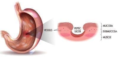 ulcers-anatomy-2