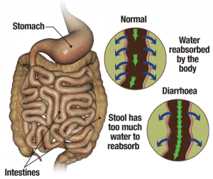 diarrhoea-anatomy