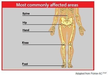 osteo-affected-areas