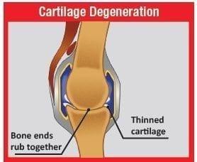 osteo-degeneration