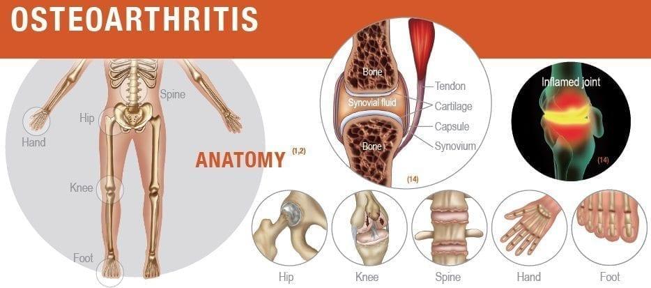 osteoarthritis-anatomy
