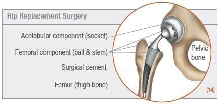 osteoarthritis-hip-replacement