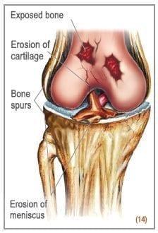 osteoarthritis-symptoms