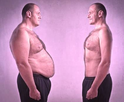 metabolic-syndrome-belly